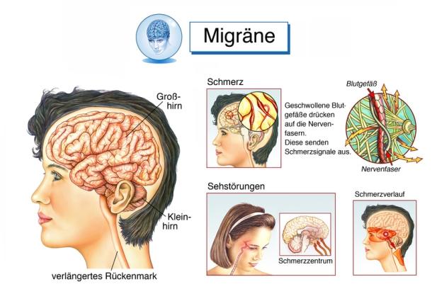 So kommt es zur Migräne