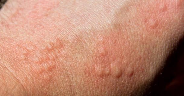 Hilfe bei allergischer Reaktion der Haut